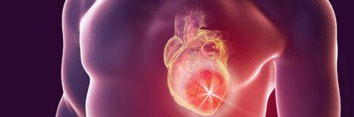 Doenças cardiovasculares: o que você precisa saber sobre escore de risco